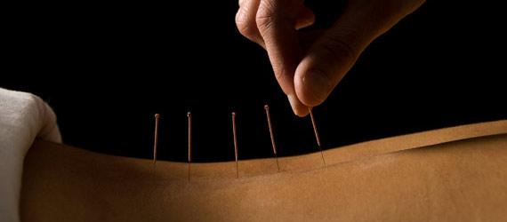 Cabinete medicale de Acupunctură în Bucuresti